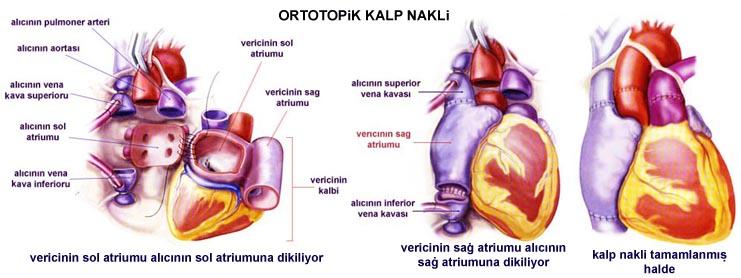 ortotopik