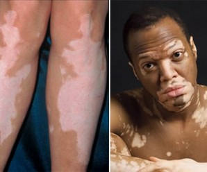 998-vitiligo-remedies