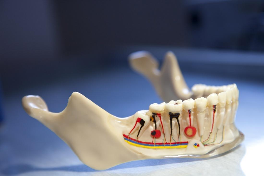 Kanal tedavisi nasıl yapılır-kanal tedavisi sonrası ağrı ne kadar kaç gün sürer
