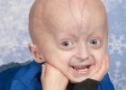 2602_progeria_1