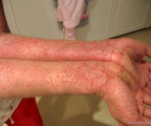 eczema-treatment-1