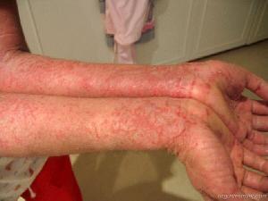 eczema-treatment-1