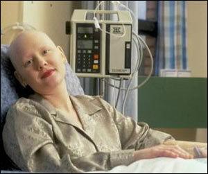 4099_kemoterapi
