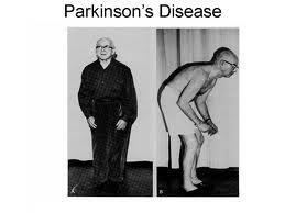 4493_parkinsm