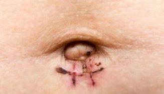 Ameliyat Sonrası Görülen Yaygın Enfeksiyonlar Nelerdir?
