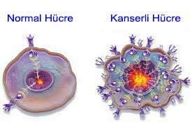 4631_kanserli-hucre-alkali-su-kansere-care