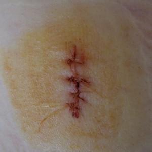 4914_wound_sewed