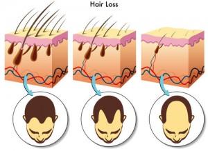 5134_hair-loss