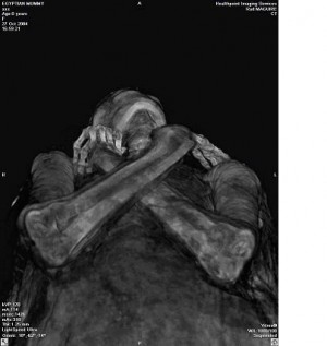 5170_lazarus_refleksili_mummy