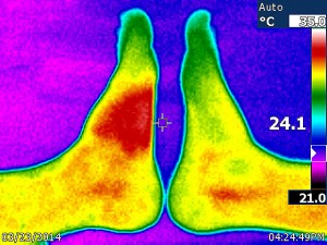 5314_thermal_effects_of_insect_bite_by_volkan_yuksel_ir001666