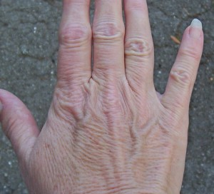 5333_thinning-skin-on-the-hands_2_8430