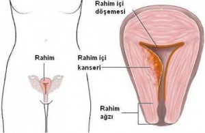 5338_rahim-kanseri-400x260
