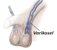 5365_varikosel1