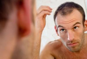 5655_hair-loss-belgravia