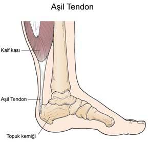 5660_asil-tendiniti