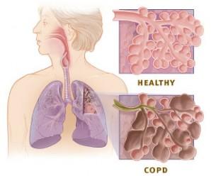 5822_copd_versus_healthy_lung