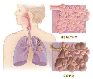 5822_copd_versus_healthy_lung