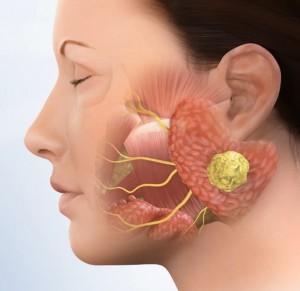 parotid-tumor