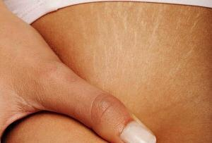 6050_three-natural-recipes-to-fade-off-stretch-marks