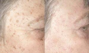 6141_age-spots-4