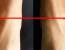 Bacaklarınızdan Biri Diğerinden Daha Mı Uzun?