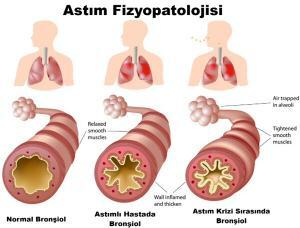 7338_anatomy-of-asthma2