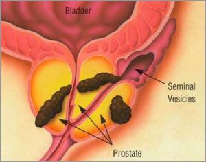 8081_prostate_cancer1