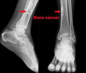 8398_bone_k