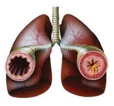 Obstrüktif bronşit nedir