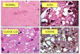 prionlar ile ilgili görsel sonucu