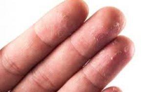 Parmak Uçlarında Deri Soyulması Nedenleri ve Tedavisi