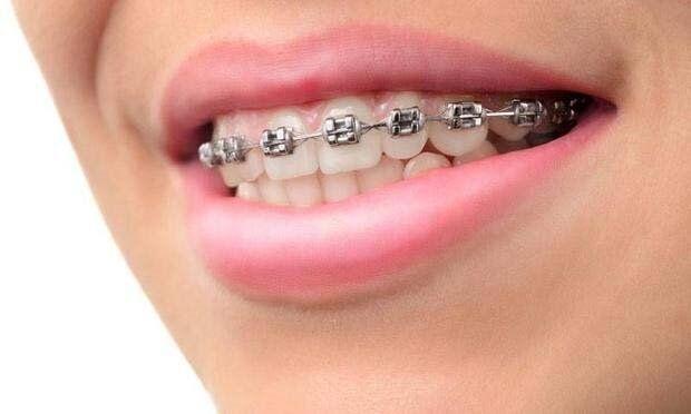 Diş Telinde Doğru Bilinen Yanlışlar