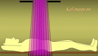Lazer Kolimatör Nedir?