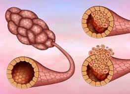 İnvaziv Duktal Karsinoma (IDC) Nedir?