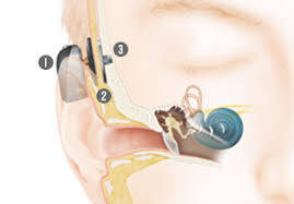 Types of Hearing Implants Used Today
