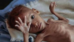 Classification of Malnutrition in Children and Women and Its Importance