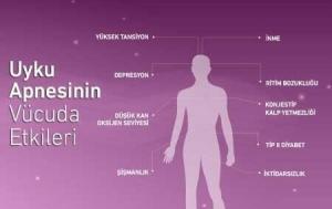 12 Health Benefits of Sleep Apnea