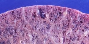 Cognitive Impairment in Idiopathic Pulmonary Fibrosis
