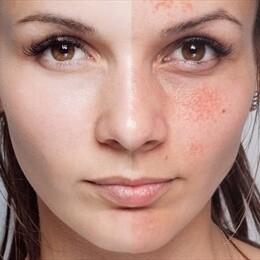 Skin Benefits of Cucumber