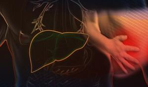 Treatment Conditions in Acute-Chronic Liver Failure