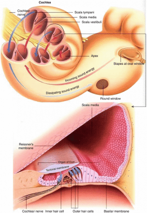 Progenitor Cell Therapy for Sensorineural Hearing Loss (SNHL) in Infants
