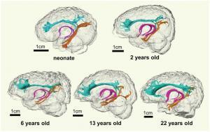 Effects of Adolescence on the Brain