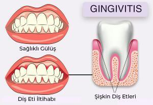 Its Connection with Dental Health and Immunity