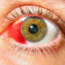 Hyphema: Definition, Causes, Prevention and Treatment Conditions