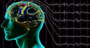 Orthexinergic and MCH Neurons in the Sleep-Wake Cycle