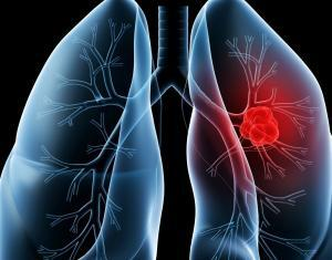 RNAI in the Treatment of Lung Cancer (LC)