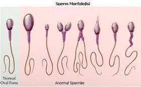Sperm Morphology and Parameters